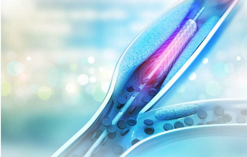 angioplastie-annecy